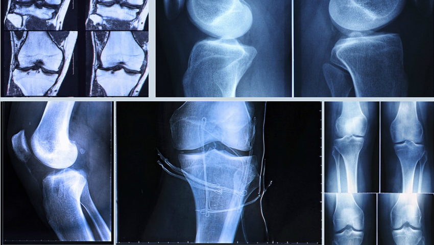 ACL Injury doctor in Lahore, Orthopedic surgeon in Lahore,Best Orthopedic Surgeon,Joint Replacement Surgery In Pakistan