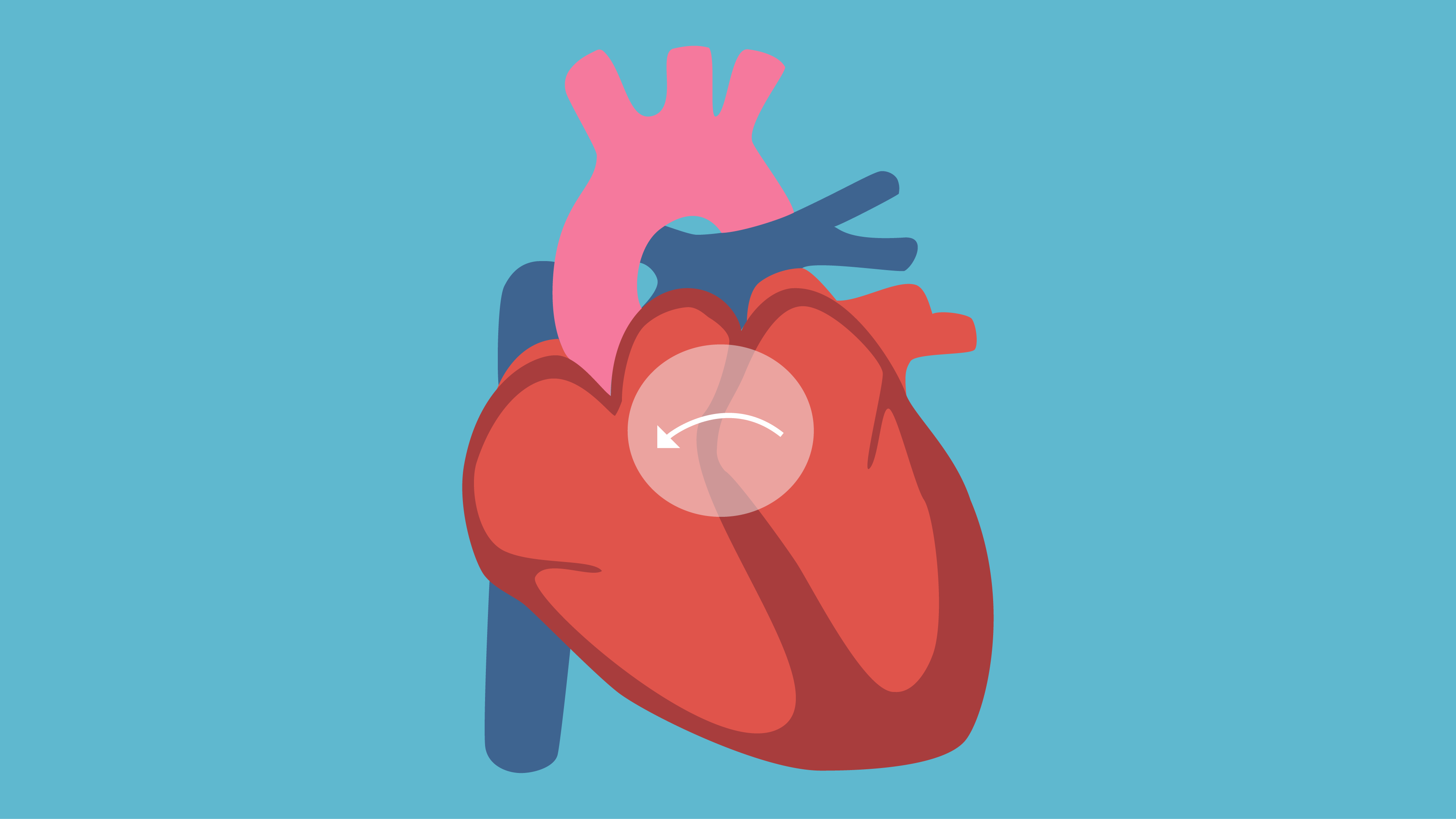 Adult Congenital Heart Disease: 5 Facts to Know