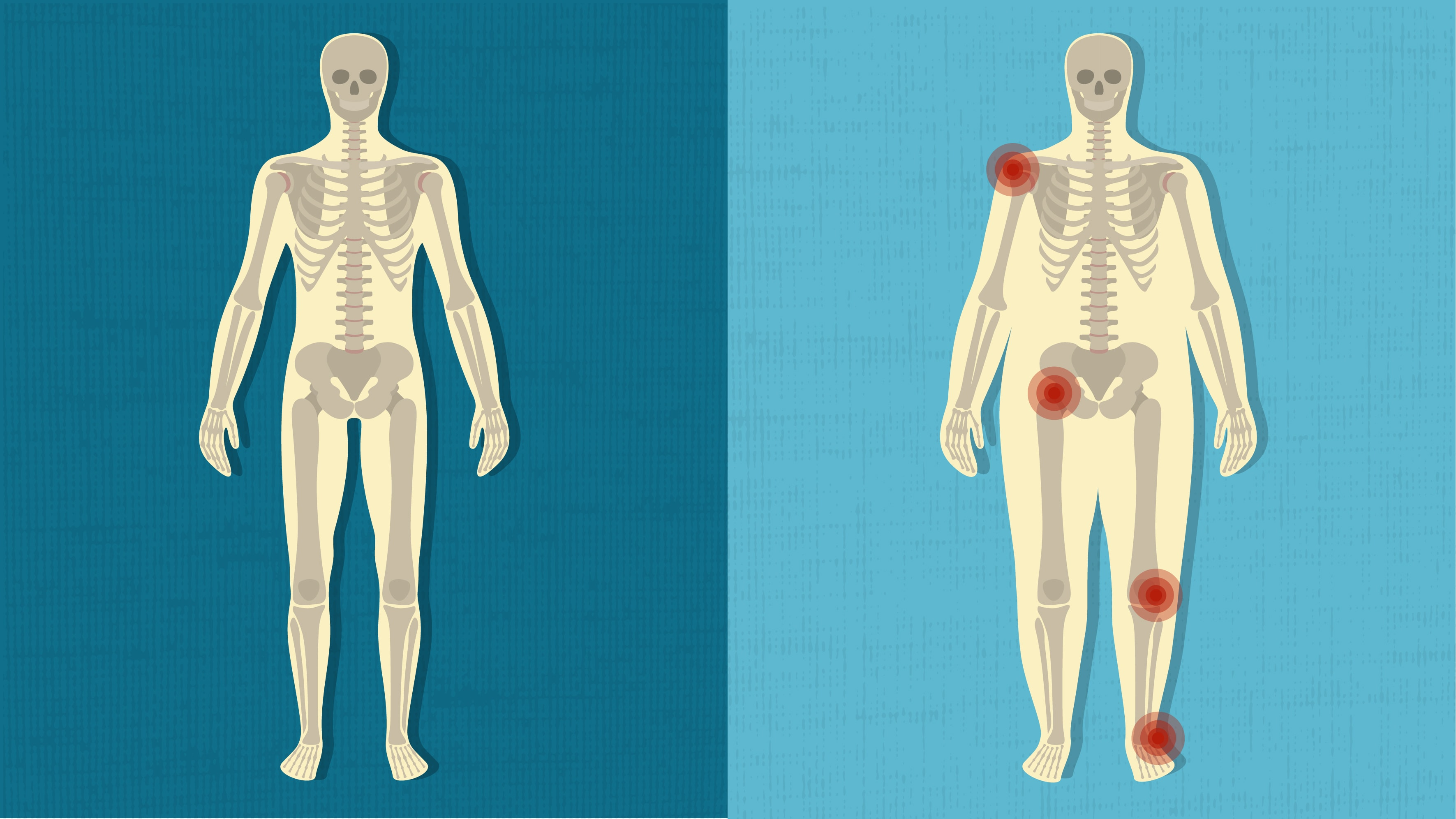 How Being Overweight Affects Your Joints Michigan Health Blog