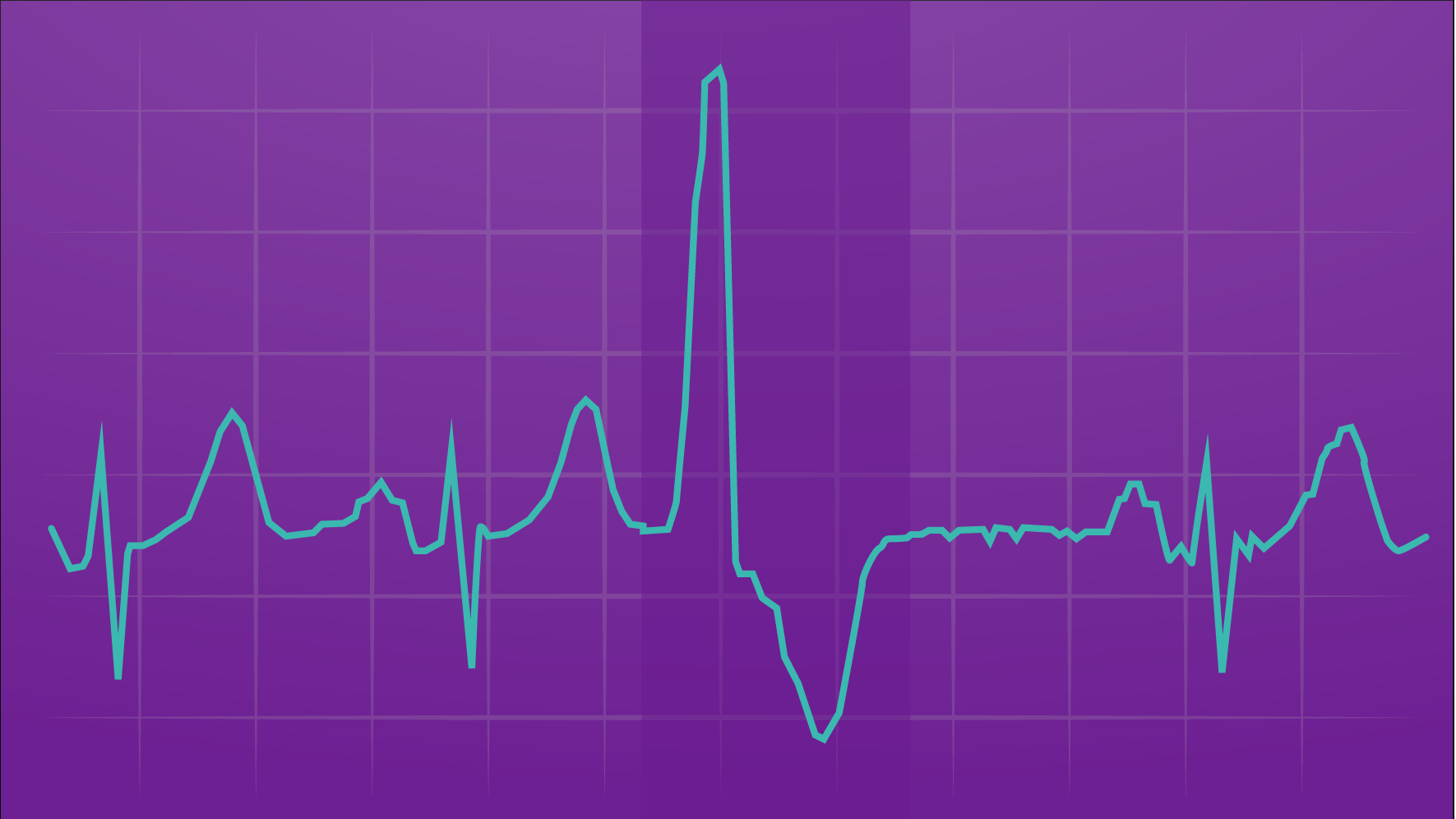 Illustration of an EKG printout showing premature ventricular contractions