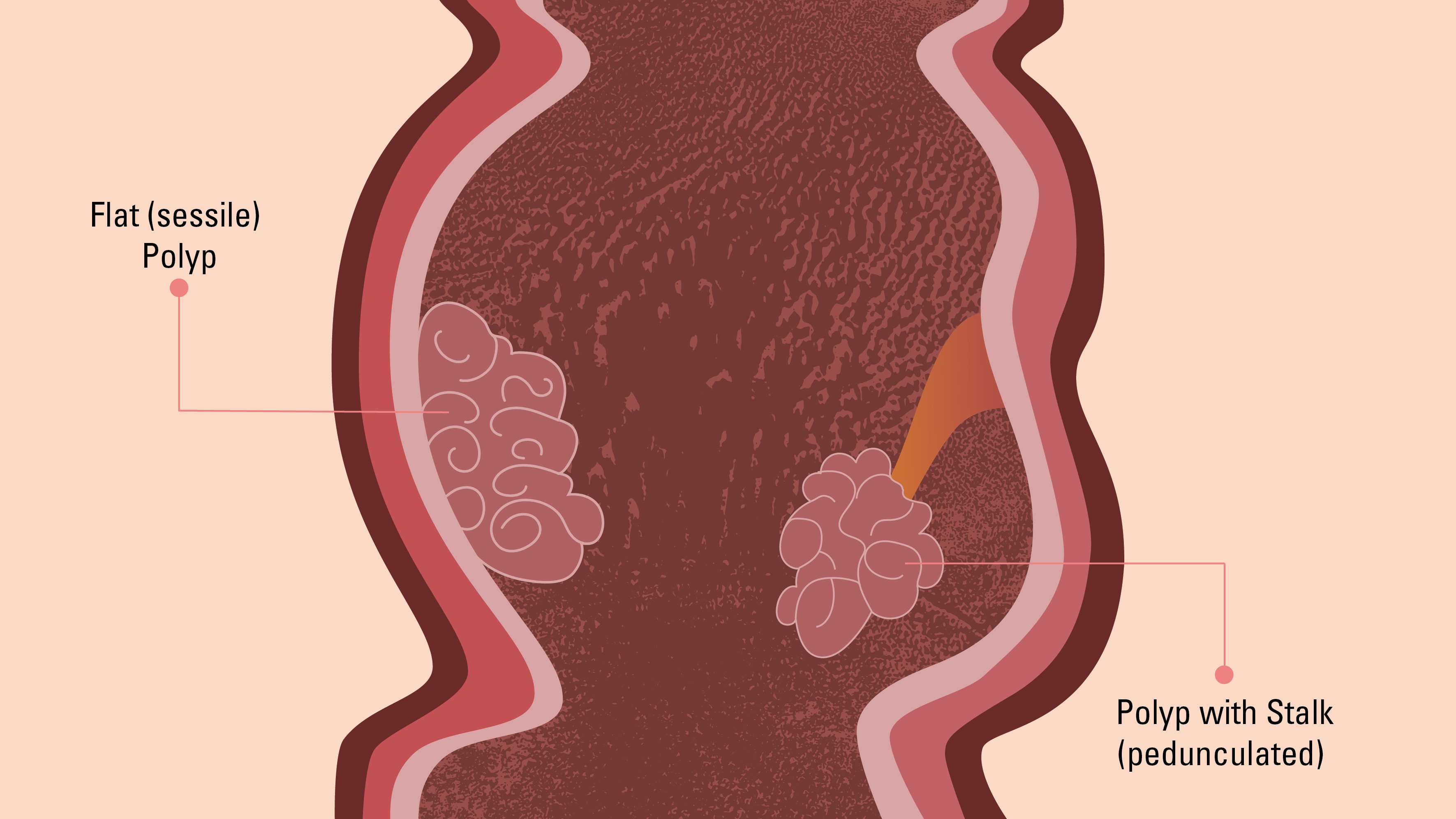 Graphic depicting sessile and pedunculated colon polyps