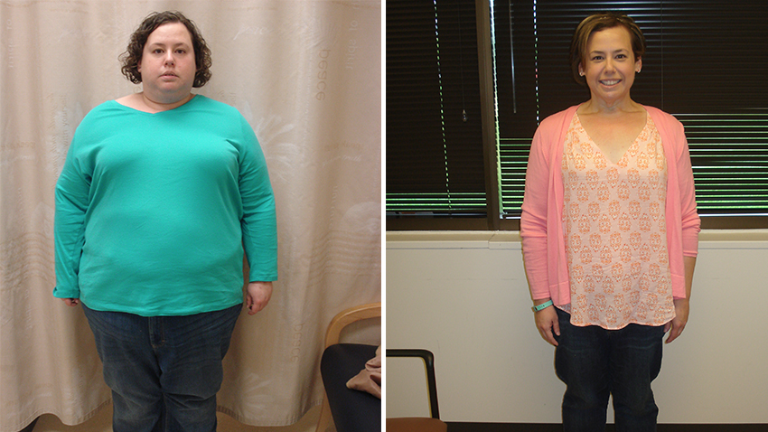 O R Nurse Chooses Bariatric Surgery For Herself