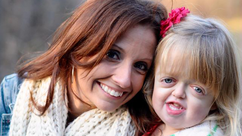 As a Mom of a Child with a Craniofacial Syndrome, I'm Seeking Acceptance