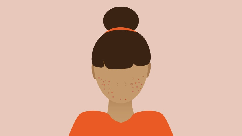 Severe Acne Treatment Options Explained By A Dermatologist