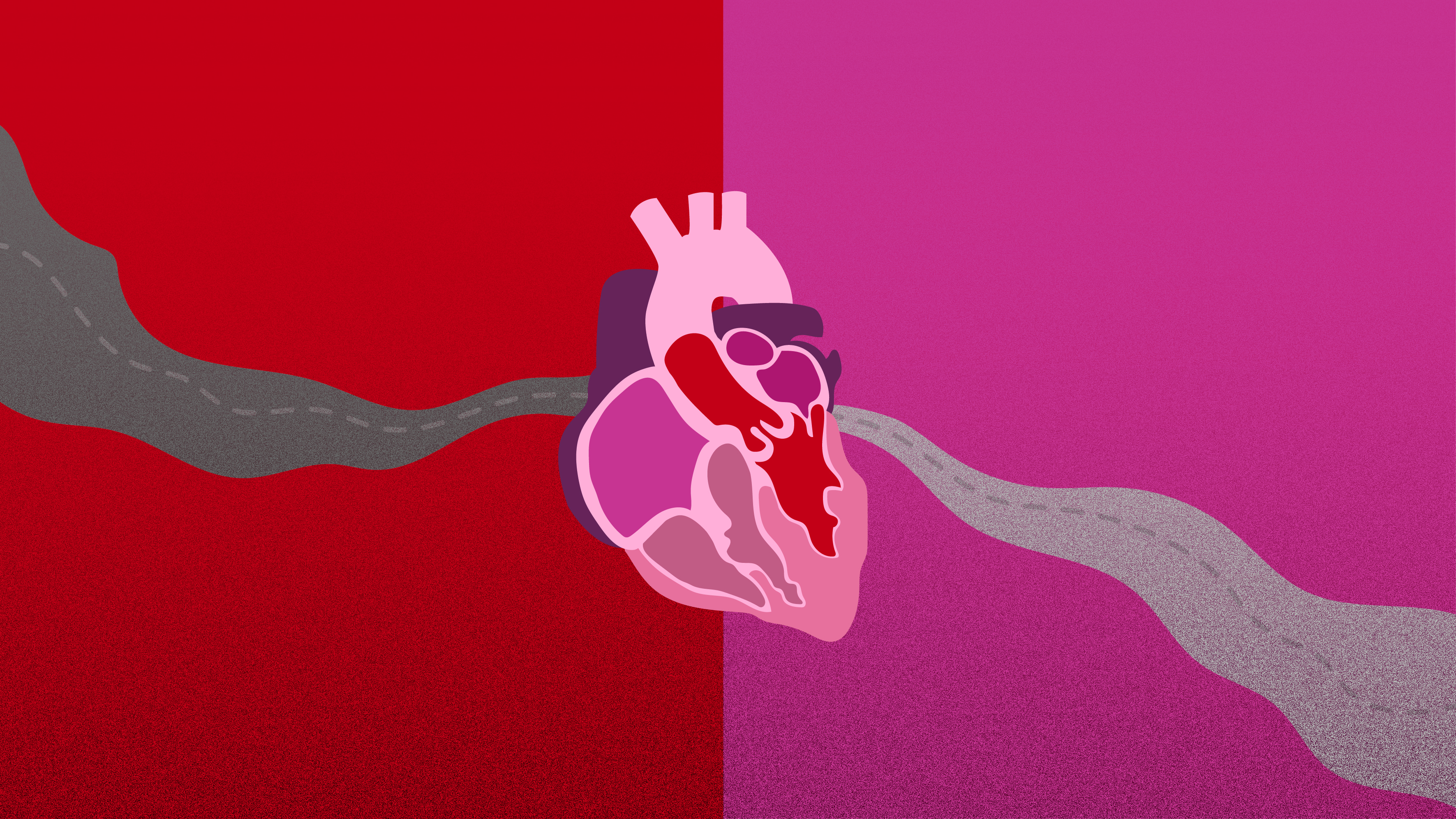 Enlarged Aorta Treatment: Observe or Operate? When Aneurysms