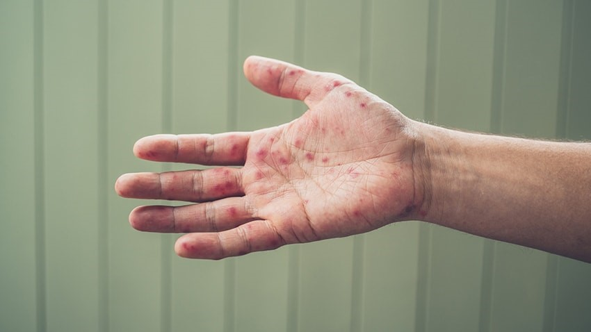 Right hand with blisters from hand, foot, and mouth disease