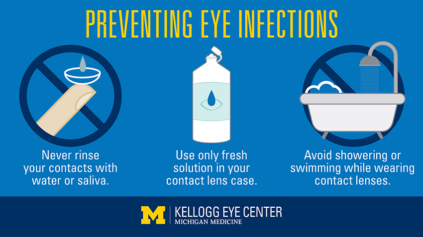 Preventing Eye Infections graphic