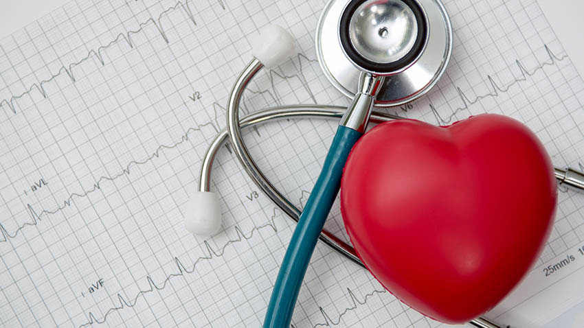 10 Heart Tests Your Doctor Might Order, and What They Mean