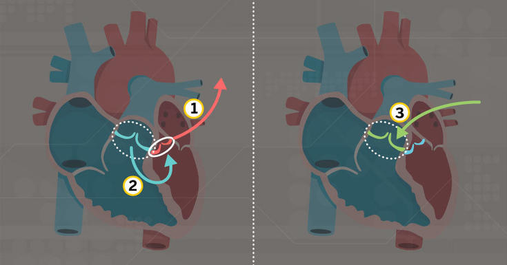 Diagram of the Ross procedure for aortic valve replacement