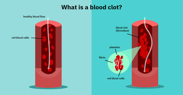 What is a blood clot image, illustrating healthy blood flow, red blood cells, blood clots, platelets, fibrin and red blood cells